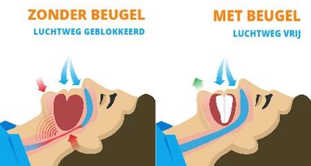 Anti snurkbeugel als alternatief voor keelstrips